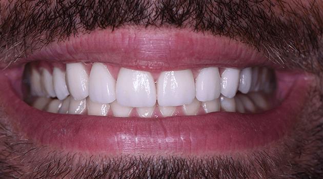 dentalalvarez-cosmetica-dental-en-tijuana-disenamos-tu-sonrisa