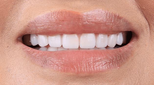 dentalalvarez-cosmetica-dental-en-tijuana-materiales-adecuados-para-tus-dientes