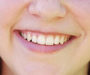 dientes-esta-cambiando-de-color